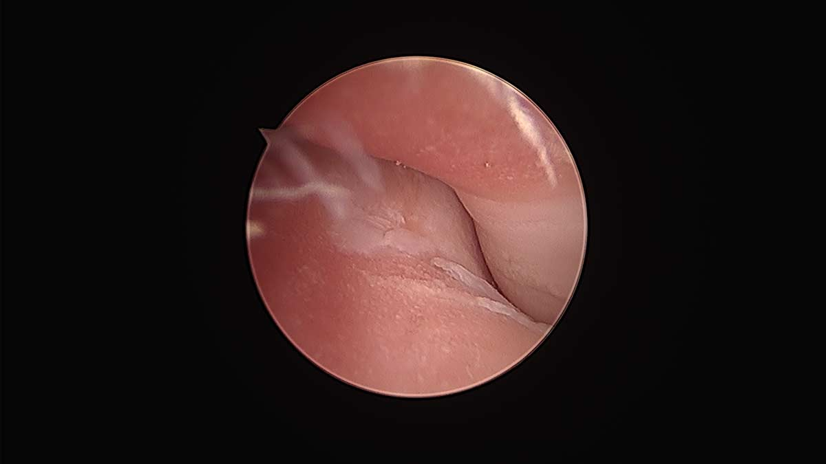 arthroscopic medial compartment syndrome